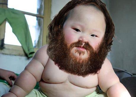 Missouri baby born with 2 bottom teeth - NY Daily News